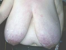 Big Breasts Macromastia Peggy
